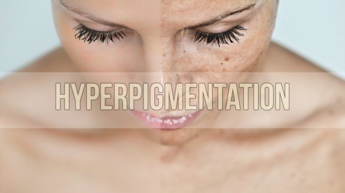Hyperpigmentation[1]