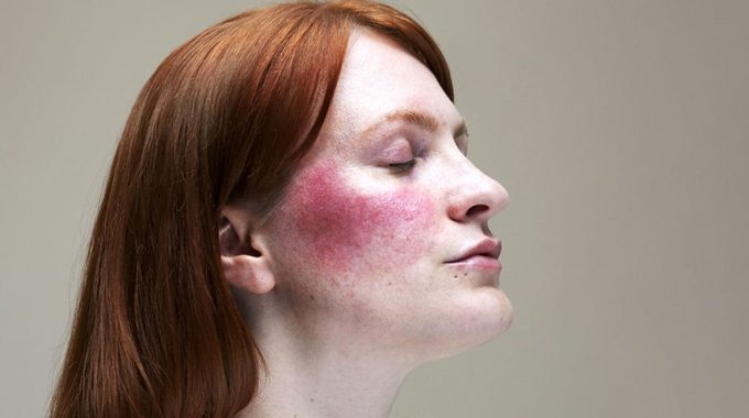 The Truth Unveiled About The Mysterious Blush